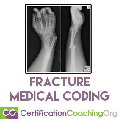 Fracture Medical Coding