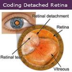 Coding Detached Retina — Video