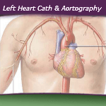 Coding Left Heart Cath and Aortography — VIDEO
