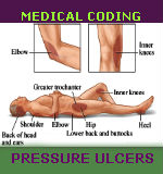 medical coding for pressure ulcers