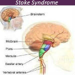 Don't Get Confused with Stroke Syndrome — VIDEO